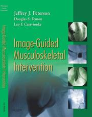 Cover of: Image-Guided Musculoskeletal Intervention