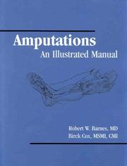 Cover of: Amputations