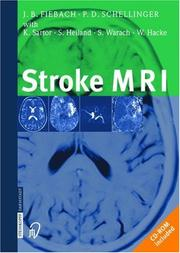 Cover of: Stroke MRI