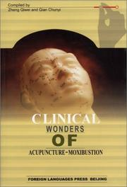 Cover of: Clinical Wonders of Acupuncture-Moxibustion