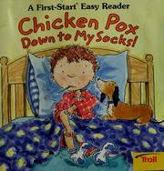 Cover of: Chicken pox down to my socks!