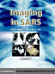 Cover of: Imaging in SARS