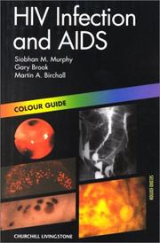 Cover of: HIV infection and AIDS