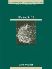 Cover of: HIV and AIDS (Special Topics in Biology Series)