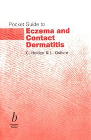 Cover of: Pocket Guide to Eczema and Contact Dermatitis (Pocket Guide)
