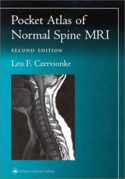 Cover of: Pocket Atlas of Spinal MRI (Radiology Pocket Atlas Series) by Leo F. Czervionke