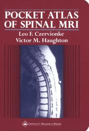 Cover of: Pocket atlas of spinal MRI by Leo F. Czervionke