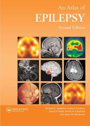 Cover of: Atlas of Epilepsy by David Chadwick
