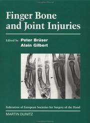 Cover of: Finger Bone and Joint Injuries | Peter Brüser
