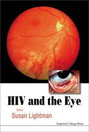 Cover of: HIV And the Eye | Susan Lightman