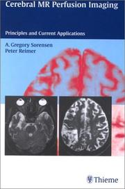 Cover of: Cerebral Mr Perfusion Imaging | A. Gregory Sorensen