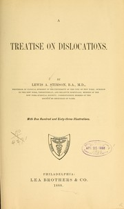Cover of: A treatise on dislocations by Lewis Atterbury Stimson